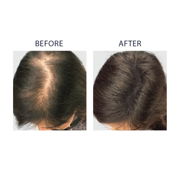 Le shampooing de la chute des cheveux après la chimiothérapie